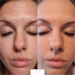 Sauerstoff Behandlung Qms Kosmetik Beauty Atelier Iris Bayer in 85551 Kirchheim bei München